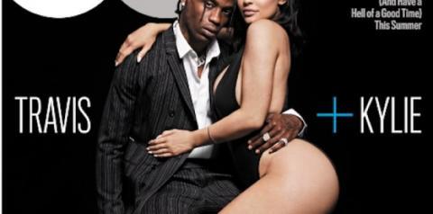 GQ é elogiada por não retocar cicatriz de Kylie Jenner em nova capa