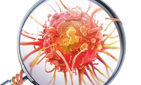 10 sintomas inusitados do câncer