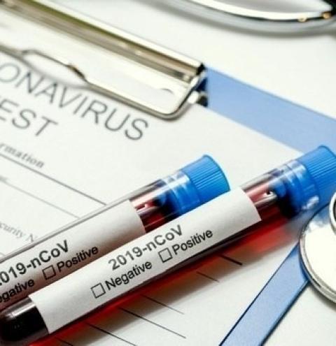 Forquilhinha confirma o primeiro caso de Covid-19